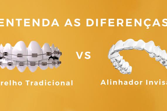 Aparelho Ortodontico Tradicional vs Alinhador Transparente Invisalign | Entenda as Diferenças